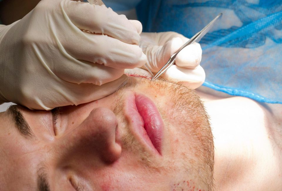 What to expect after a beard transplant? Hair Repair Clinic