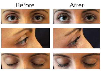 Eyelash Transplants Hair Repair Clinic