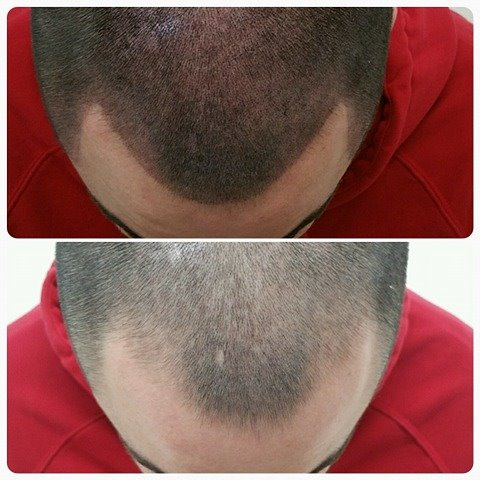 Scalp Micro Pigmentation Hair Repair Clinic