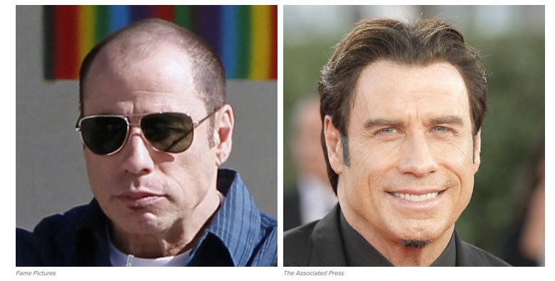 Celebrities' Hair Transplant Stories Hair Repair Clinic