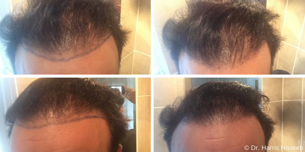 A Crown Full Of Glory: Chad's Hair Transplant Story Hair Repair Clinic