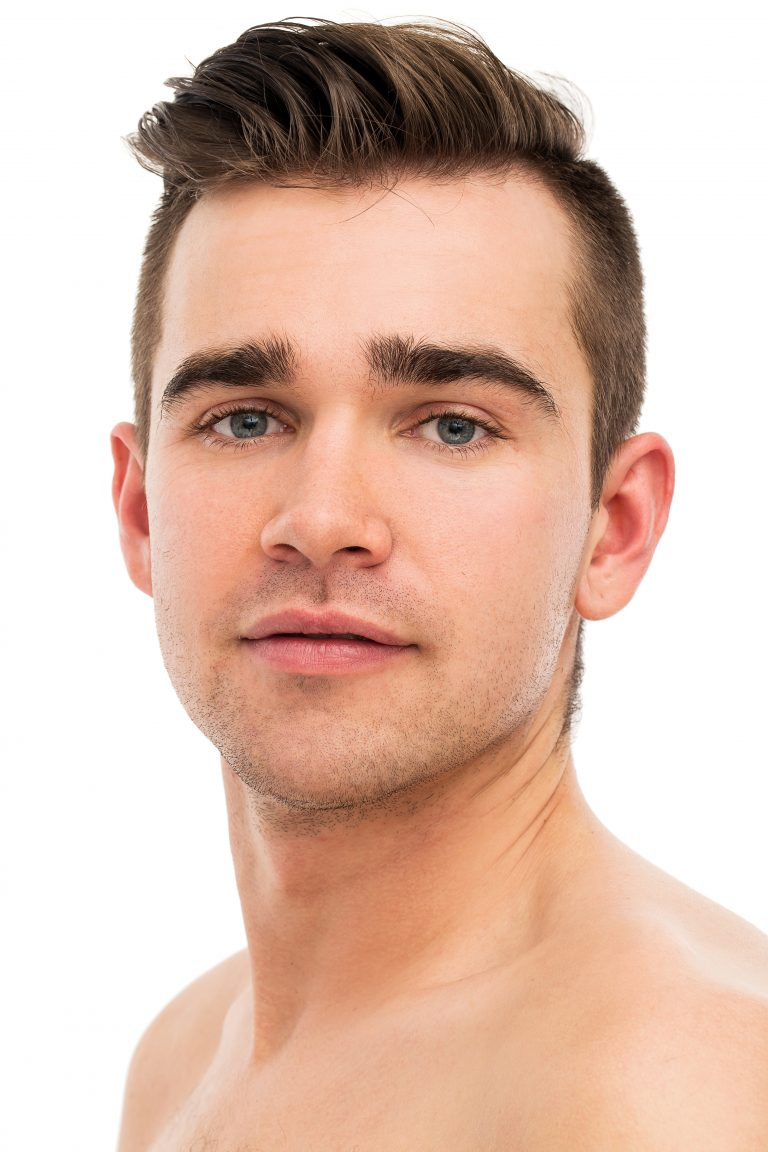 Eyebrow Transplants for Men Hair Repair Clinic