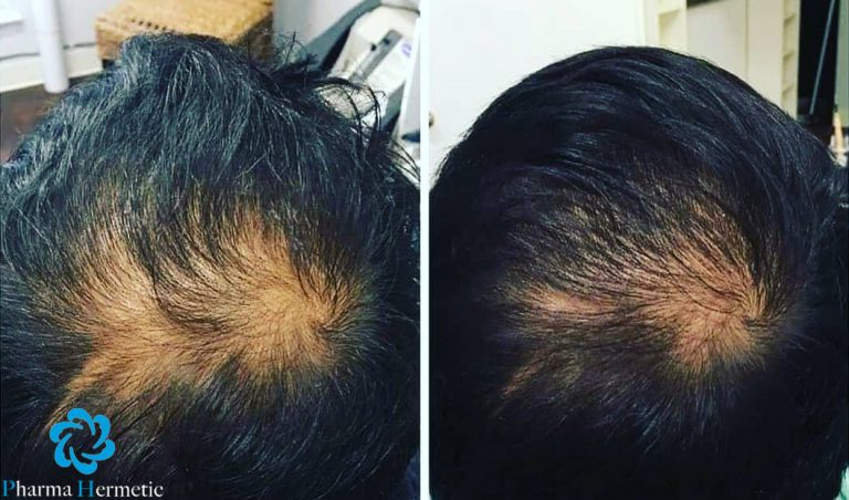 Hermetic Hair Recovery Program HRP for Men Hair Repair Clinic