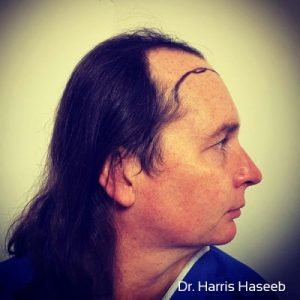 Dr. Harris Haseeb Hair Repair Clinic